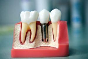 Зубы по технологии all-on-4 за 1 день